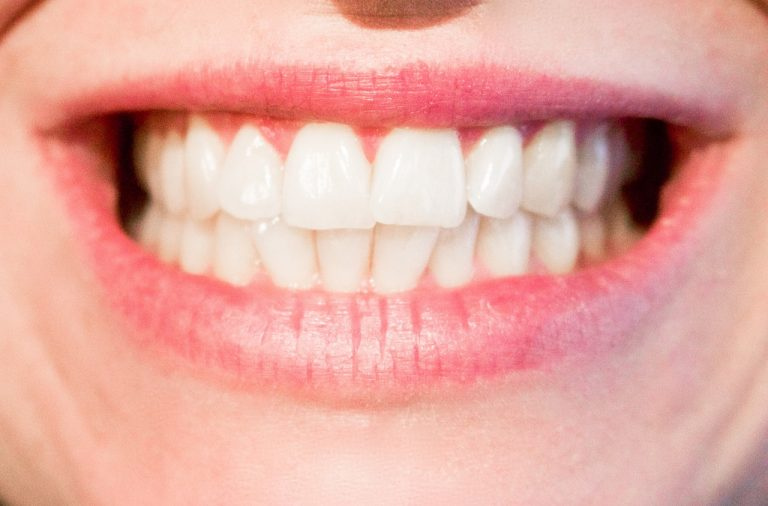 FIX YOUR SMILE AT THE CLICK OF AN APP   BusinessMole
